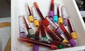 Что значит пониженный общий белок в крови