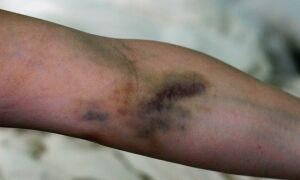 Лечение постинъекционного флебита вены на руке