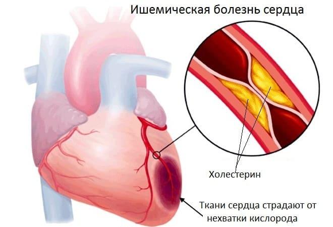Лечение ишемической болезни сердца в домашних условиях