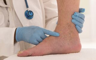 Мазь от тромбофлебита поверхностных вен на ногах