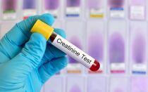 Чем опасен высокий уровень креатинина в крови и таблица норм