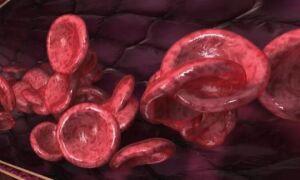 Особенности 4 группы крови человека