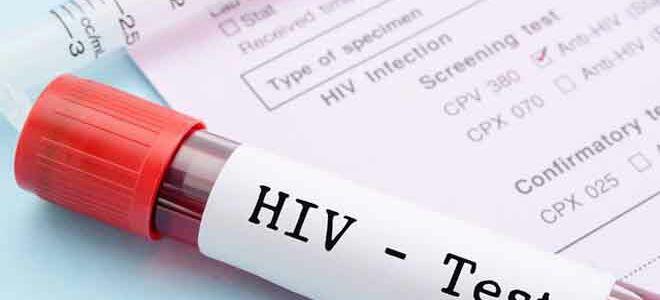 Сколько действует анализ крови на ВИЧ