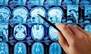 Сколько живут после инсульта и возможные последствия