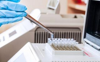 Достоверность диагностики ПЦР на ВИЧ