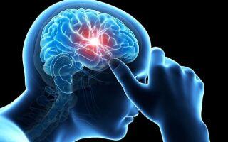 Тромбоз синуса головного мозга