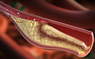 Таблица норм холестерина в крови по возрасту у человека