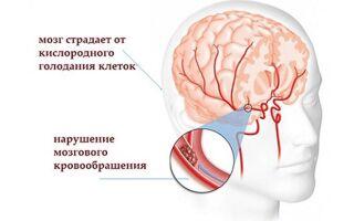 Дисциркуляторная энцефалопатия: причины, симптомы, классификация и лечение