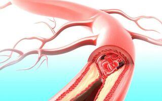 Что такое варикозное расширение вен желудка
