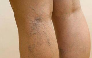 Лечение варикозной сетки и звездочек на ногах
