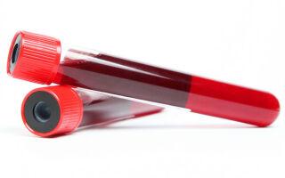 Когда сдают анализ крови Д-димер и что показывают отклонения результатов от нормы