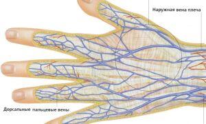 Причины и лечение лопнувшего сосуда на пальце руки
