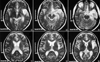 Методы лечения дисциркуляторной энцефалопатии (ДЭП) народными средствами