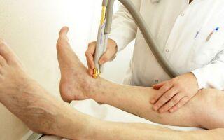 Симптомы и лечение ишемии нижних конечностей