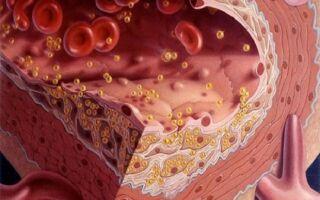 Как понизить холестерин в крови до нормы