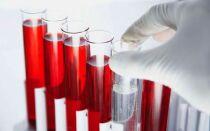 Что значит повышен АЛТ в анализе крови