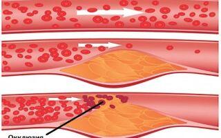 Как лечить окклюзию артерий нижних конечностей