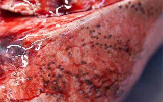 Почему происходит кровотечение при циррозе печени и как это лечить