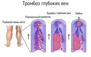 Тромбоз глубоких вен нижних конечностей: симптомы, лечение, профилактика