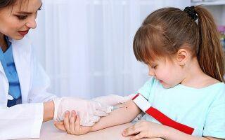 Что значит повышенный билирубин в крови ребенка