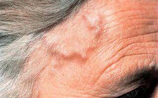 Симптомы и лечение височного артериита