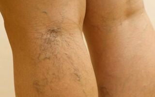 Как лечить илеофеморальный тромбоз нижних конечностей