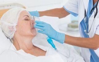 Как предотвратить пневмонию у лежачих больных после инсульта