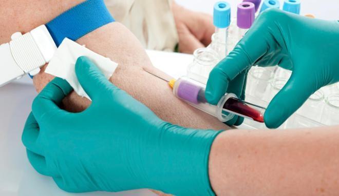 Клинический забор крови из вены
