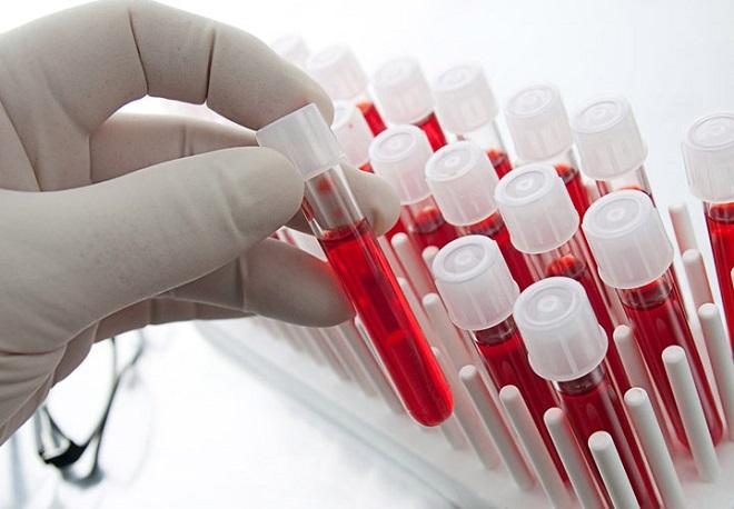 Количество взятой крови на общий анализ