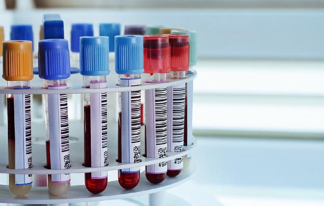 Лабораторные пробирки с анализами крови в подставке