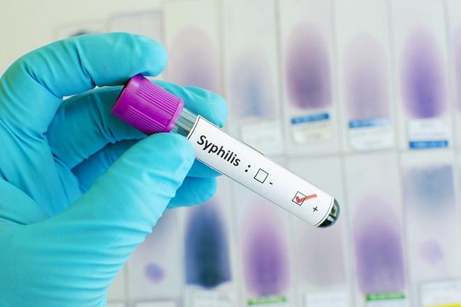 Кровь на сифилис методы диагностики правила сдачи анализа расшифровка