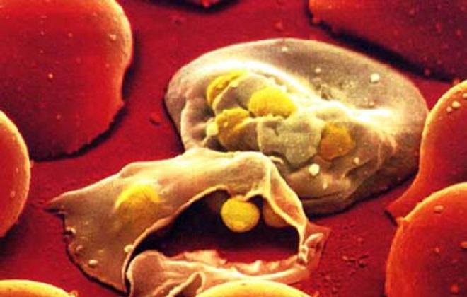 Налип холестерина на стенках артерий
