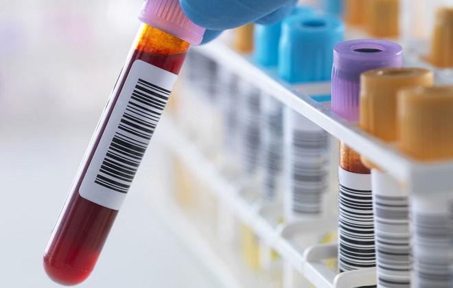 Номинации пробирок с кровью при сдаче анализов
