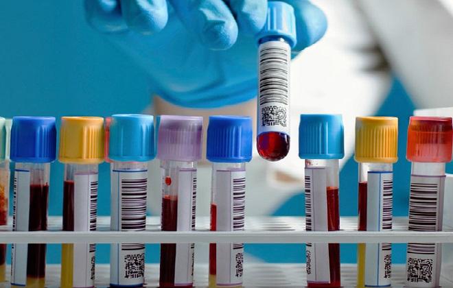 Отслоение плазмы от эритроцитов перед анализом