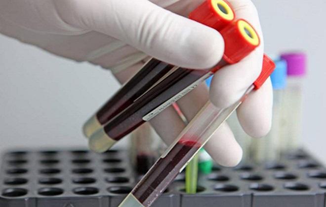 Правильно набранные образцы крови для анализа