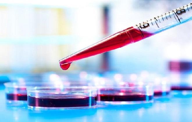 Проверка крови на содержание мочевой кислоты