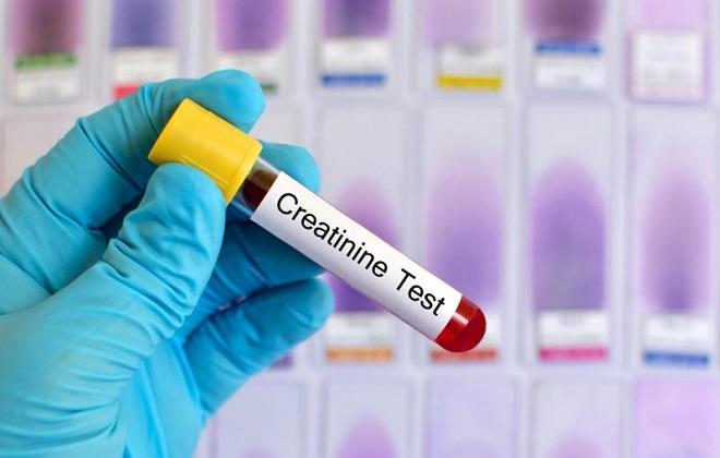 Прохождение тестирования крови на уровень креатинина