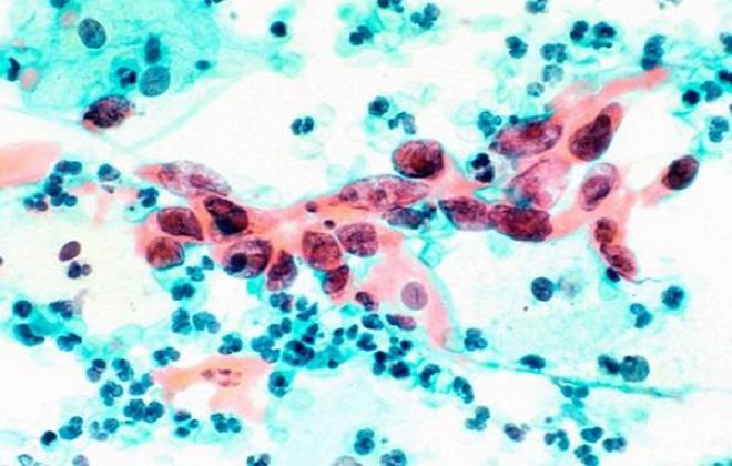 Большое количество белых клеток крови в анализе