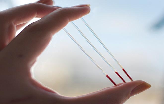Кровь в стеклянных трубочках при определении гематокрита