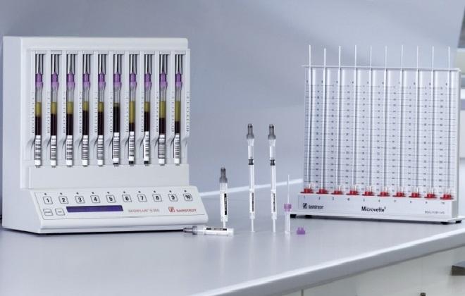 Методика проверки уровня оседания эритроцитов
