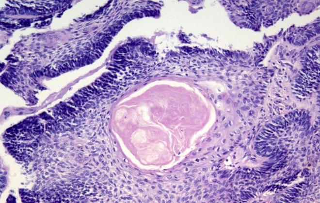 Небольшое количество больших клеток в крови