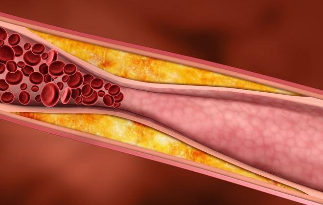 Плохое прохождение крови при увеличенном показателе