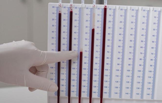 Проверка скорости оседания эритроцитов