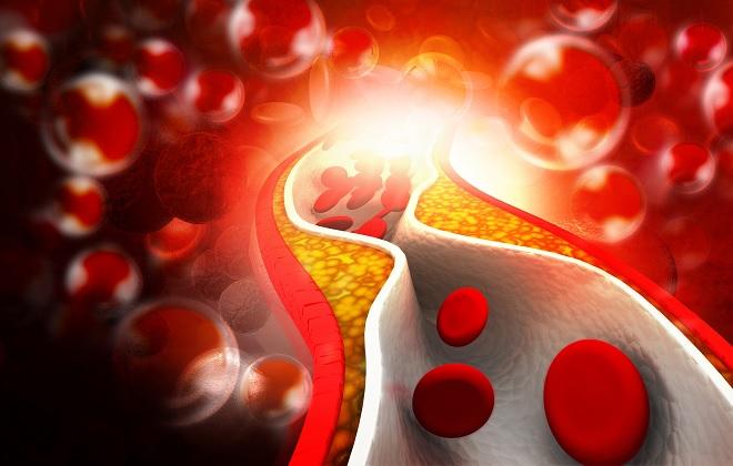 норма общего холестерина в крови