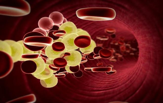 Снизить холестерин золотой ус