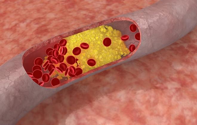 Образование варикоза при плохом холестерине
