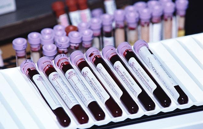 Подготовка собранной крови для анализа