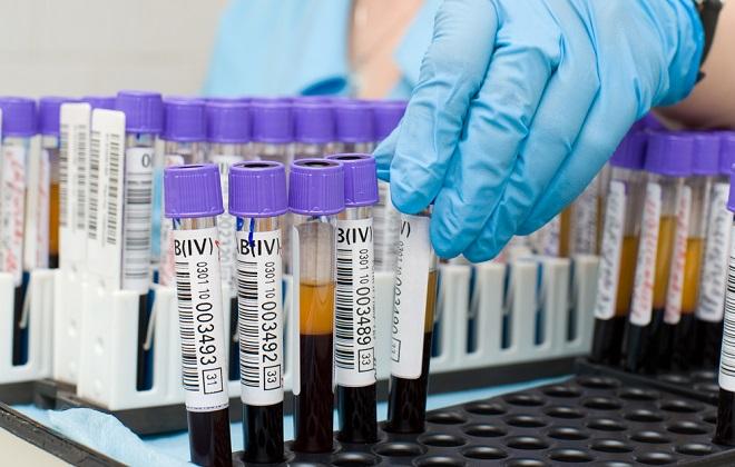 Проверка крови на отклонения