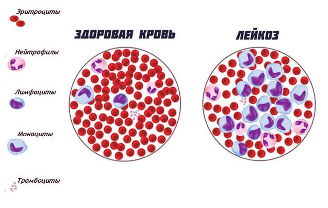 Как по анализу крови определить рак у человека Медотвод от прививок Котельники