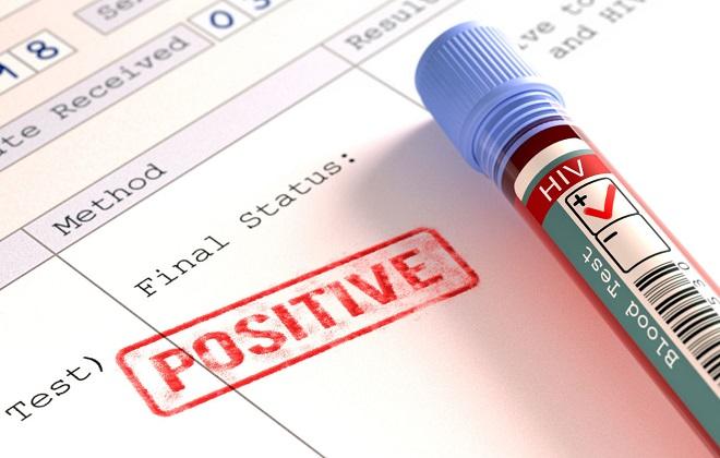 Результаты исследования крови человека на инфекции передающиеся половым путем могут быть не всегда достоверны